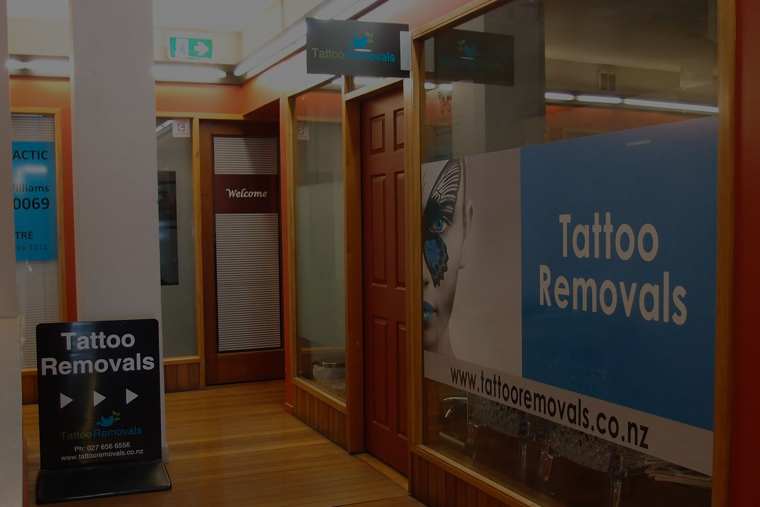 Tattoo Removals Auckland