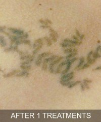 Tattoo Removal After